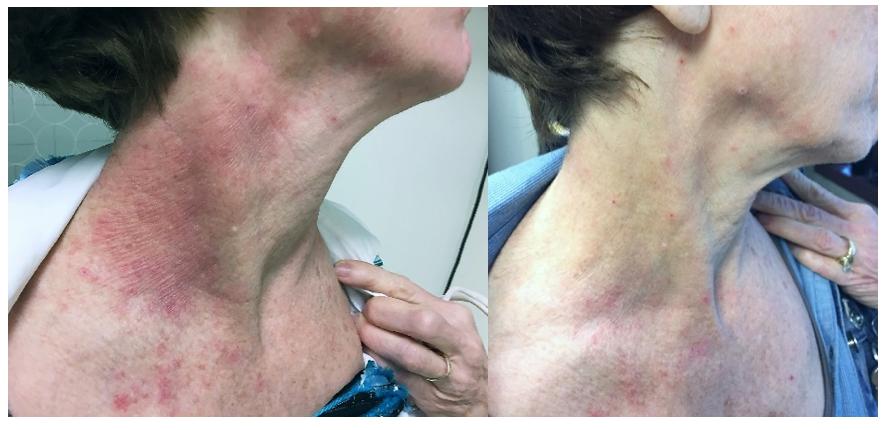 Atopic Dermatitis Crisaborole